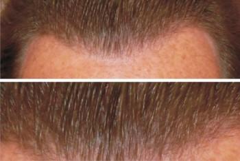 Büyük Alan Saç Ekim